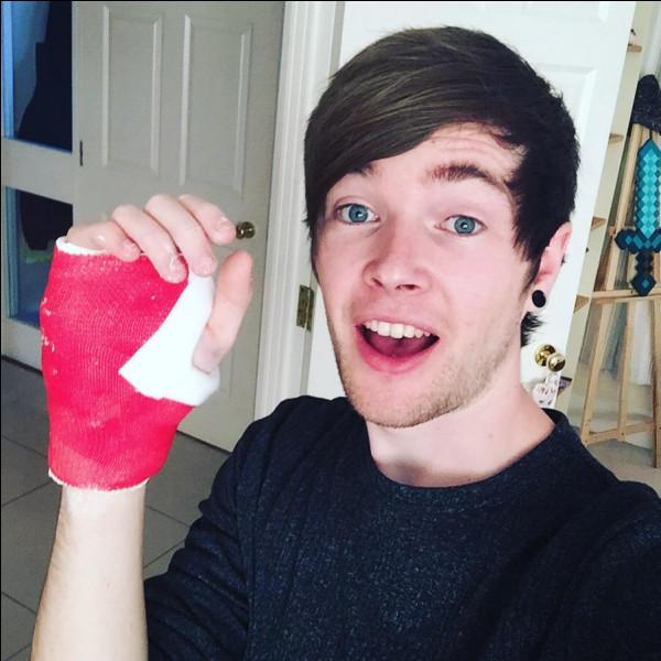 How did Dan broke his hand?