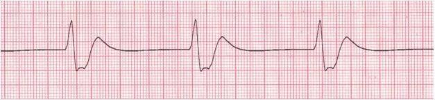SMA Sleep Quiz (EKG)