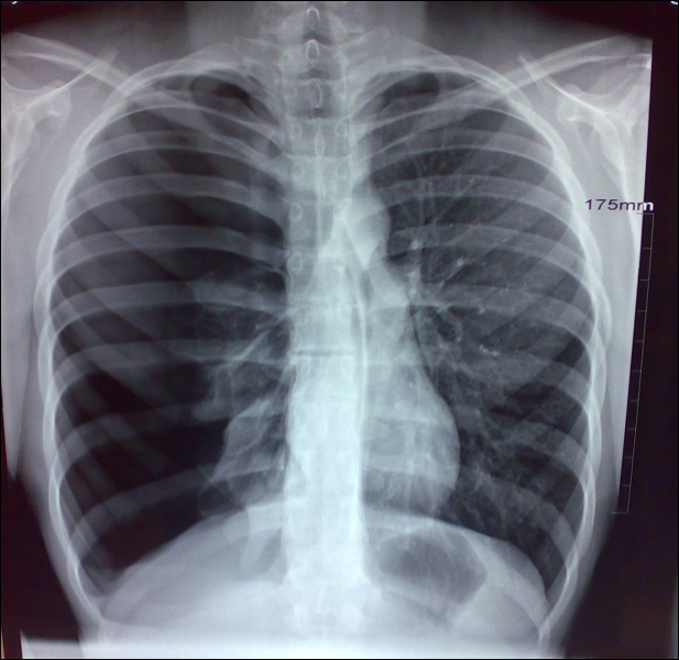 This radiograph illustrate which pathological condition?