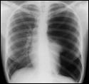 This radiograph illustrates which pathological condition?
